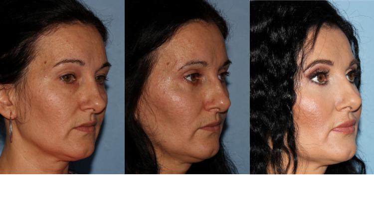 NU'CLINIC-Blefaroplastika-plastika očných viečok-poloprofil klientky sprava-fotografie PRED a PO zákroku
