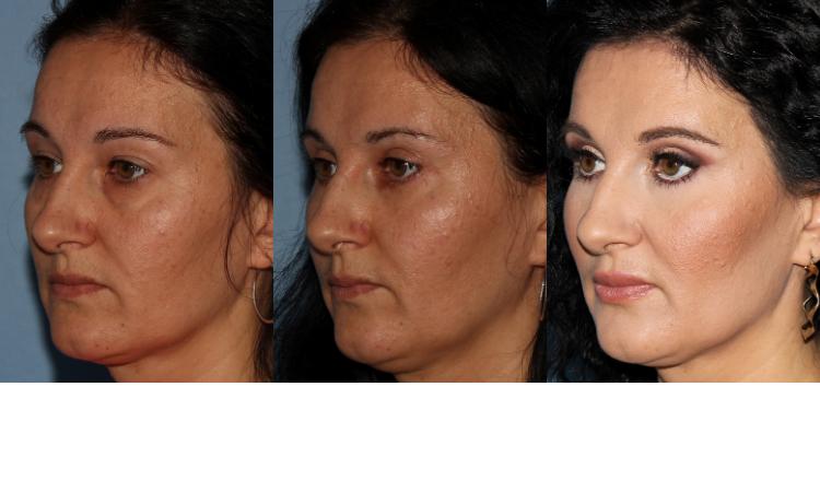 NU'CLINIC-Blefaroplastika-plastika očných viečok-poloprofil klientky zľava-fotografie PRED a PO zákroku