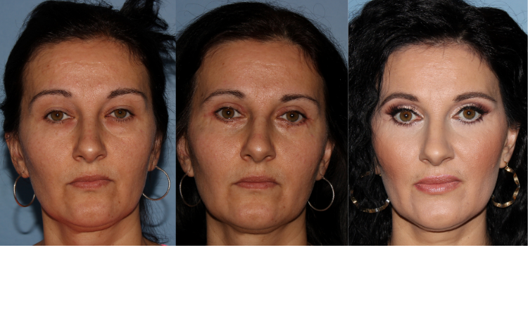 NU'CLINIC-Blefaroplastika-plastika očných viečok-klientka spredu-fotografie PRED a PO zákroku