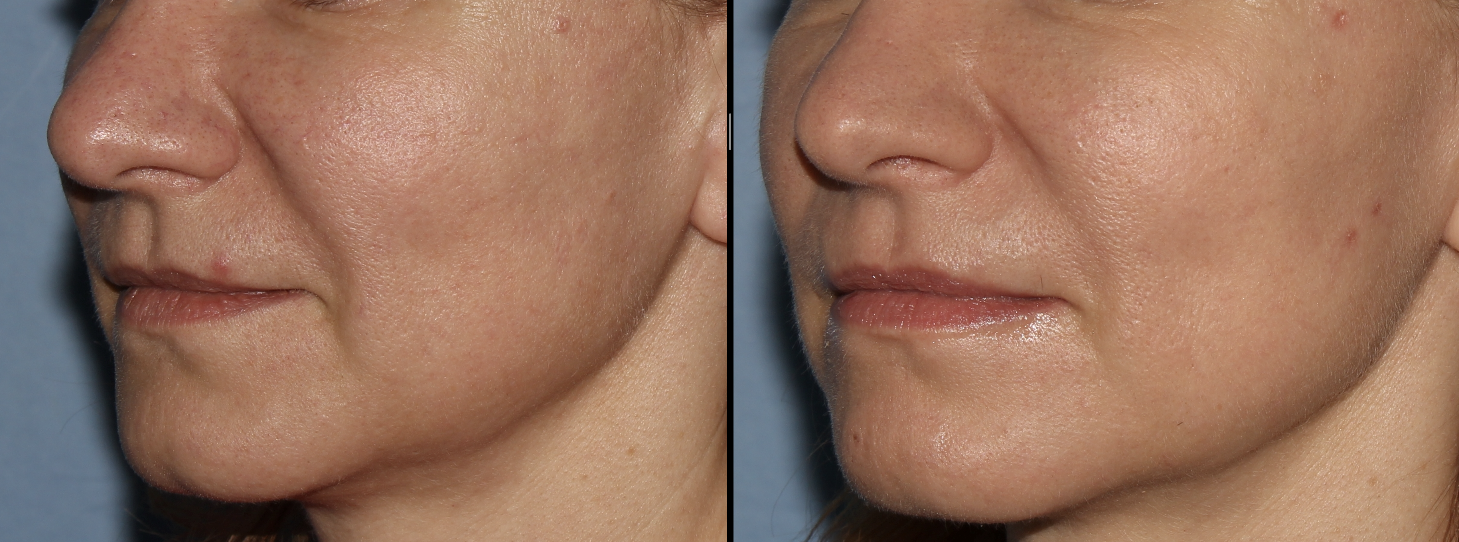 Fotona4D lifting tváre PRED a PO vľavo