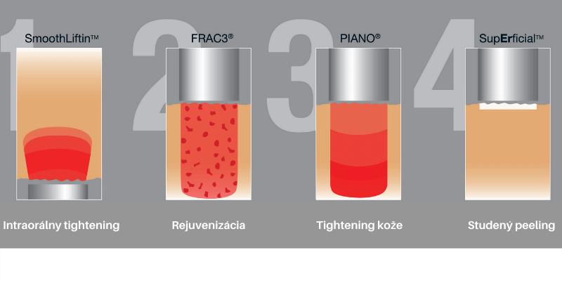 Grafické znázornenie postupu jednotlivých krokov pri ošetrení Fotona 4D Lifting