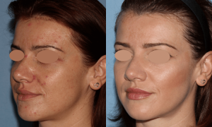 NU'CLINIC–AcneClearLase–liečba akné laserom zľava