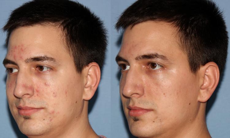 NU'CLINIC–AcneClearLase–liečba akné laserom klient zľava