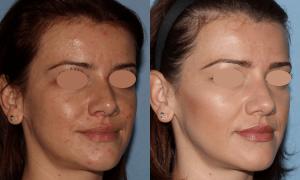 NU'CLINIC–AcneClearLase–liečba akné laserom sprava