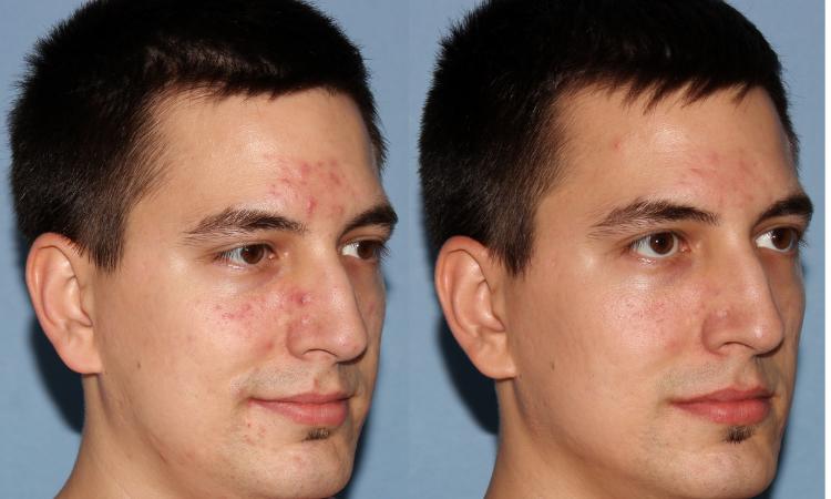 NU'CLINIC–AcneClearLase–liečba akné laserom klient sprava