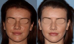 NU'CLINIC–AcneClearLase–liečba akné laserom spredu