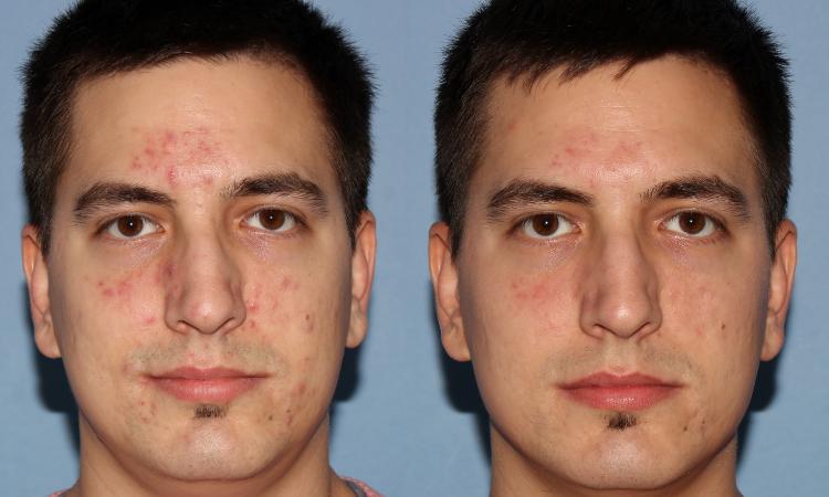 NU'CLINIC–AcneClearLase–liečba akné laserom klient spredu