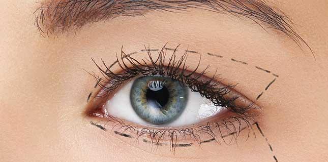 NU'CLINIC-Blefaroplastika-Plastika očných viečok