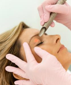 NU'CLINIC–SmoothEye–spevnenie viečok a očného okolia laserom