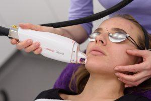Ošetrenie Baby Face Beauty laserom LaseMD