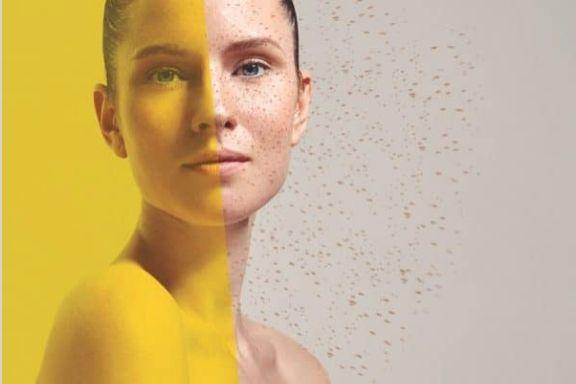Odstraňovanie pigmentových škvŕn chemickým peelingom - Lumpeel